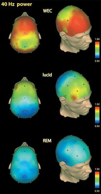 Sonhos Lúcidos podem auxiliar no tratamento de psicoses